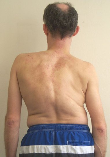 Adult correcting scoliosis